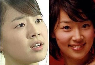Han Ji Hye đi xẻ mí.