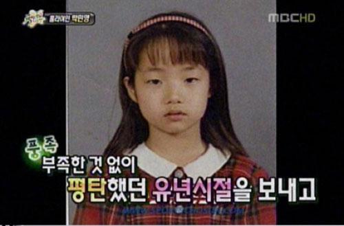 park-min-young-phau-thuat-tham-my-1
