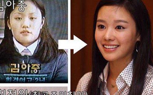 kim-ah-joong-bi-nghi-ngo-dao-keo-3