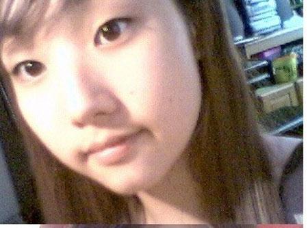 park-min-young-phau-thuat-tham-my-3