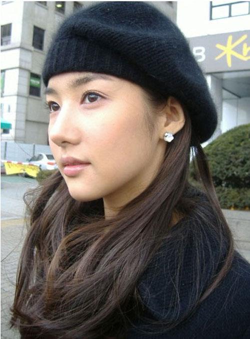 park-min-young-phau-thuat-tham-my-31
