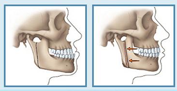 phau thuat chinh hinh ho mom 2  Phẫu thuật chỉnh hình hàm hô ở đâu là tốt nhất?