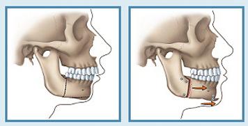 phau thuat chinh hinh ho mom 3  Phẫu thuật chỉnh hình hàm hô ở đâu là tốt nhất?