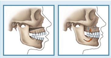 Phẫu thuật xương hàm trên