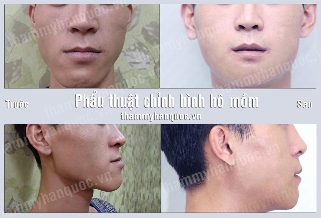 phau-thuat-vau-ham-duoi-1024x695