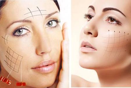 Tổng quát về công nghệ căng da mặt bằng chỉ Ultra V Lift-hình 4