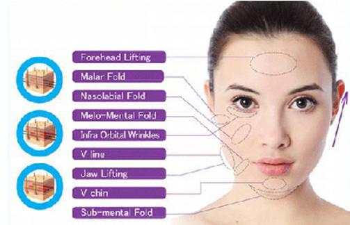 Tổng quát về công nghệ căng da mặt bằng chỉ Ultra V Lift-hình 5