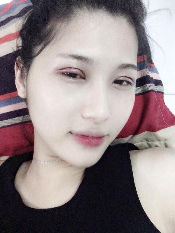 """Hành trình """"lột xác"""" của 9X đầu tiên chuyển giới tại Việt Nam 18"""