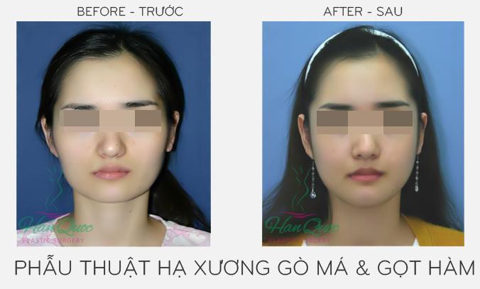 Hình ảnh phẫu thuật khuôn mặt trái xoan