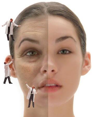 Căng da mặt giá rẻ có thực sự hiệu quả?