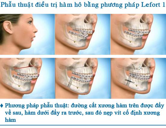 Cắt xương hàm có đau không?