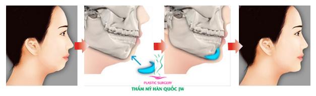 [Hình: don_cam_bang_implant_01.jpg]
