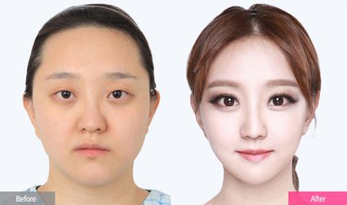 Bà mẹ 3 con trẻ như gái 18 sau phẫu thuật thẩm mỹ