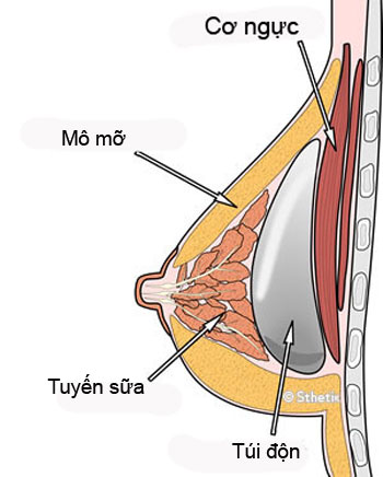Đặt túi ngực dưới cơ