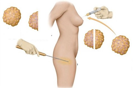 Nâng ngực bằng mỡ tự thân là gì