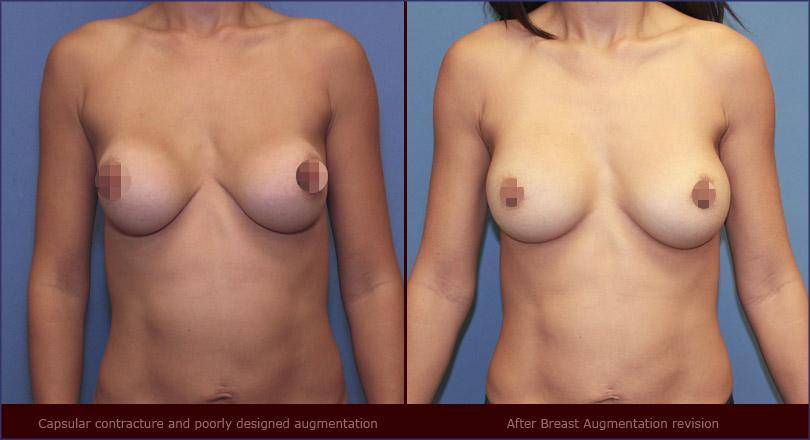 Nâng ngực túi xốp Polytech - Microthane - 3