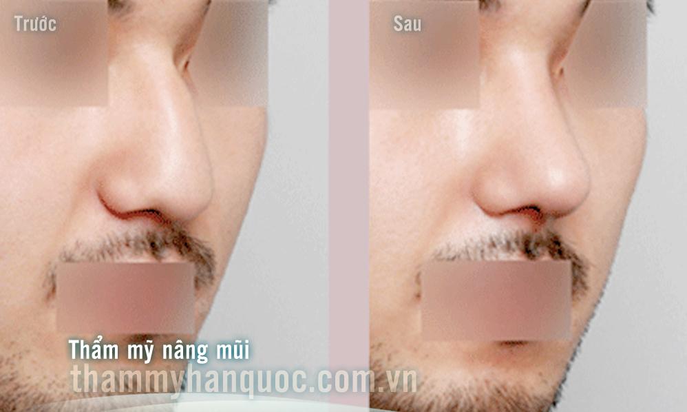Giá phẫu thuật nâng mũi cho nam giới