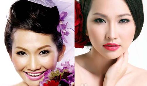 Kim Hiền phẫu thuật sửa mũi