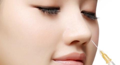Nâng mũi không phẫu thuật webtretho