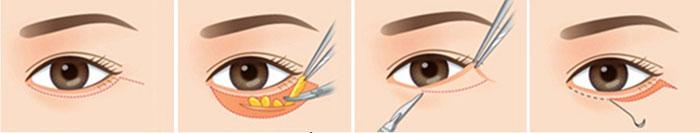 Phẫu thuật cắt da thừa mí mắt dưới
