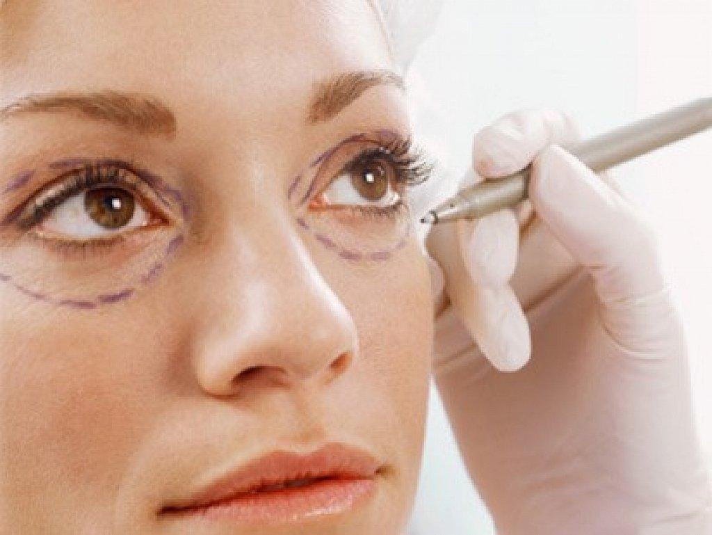 Phẫu thuật cắt mí mắt dưới 2