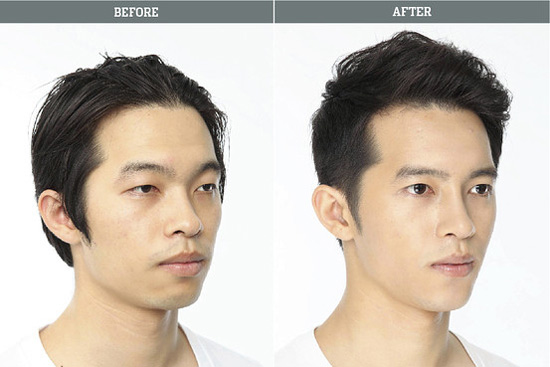 Phẫu thuật khuôn mặt cho nam giới