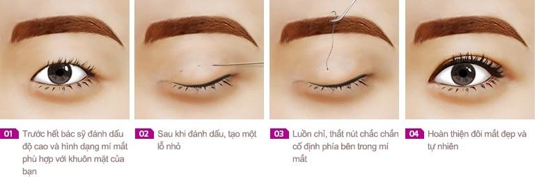 Phẫu thuật nhấn mí mắt Hàn Quốc 3