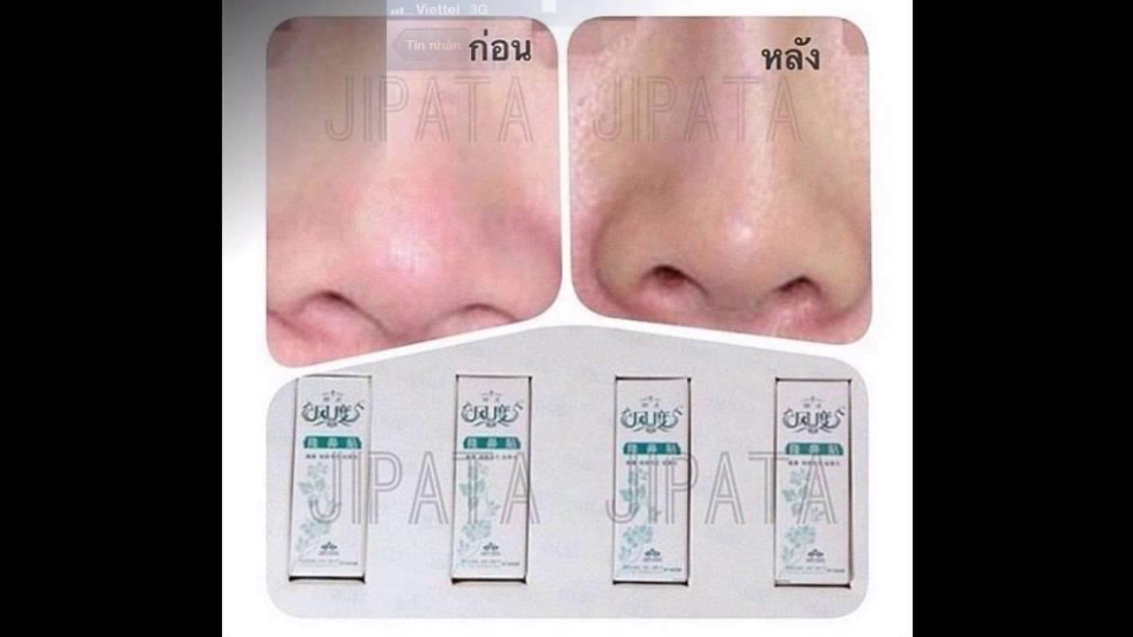Serum nâng mũi 3