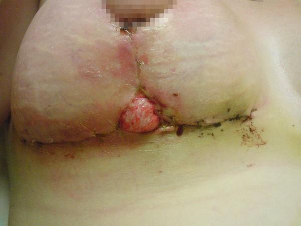 Suýt chết vì ham phẫu thuật thẩm mỹ GIÁ RẺ 2