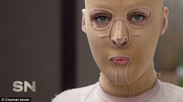 Cô gái bị thiêu hủy gương mặt trở nên xinh đẹp nhờ phẫu thuật thẩm mỹ