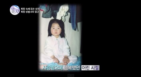 Cô gái trẻ được cứu giúp nhờ phẫu thuật thẩm mỹ