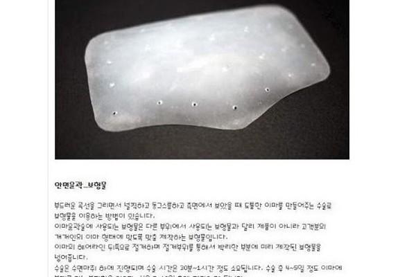 Sao Hàn và mốt độn trán.