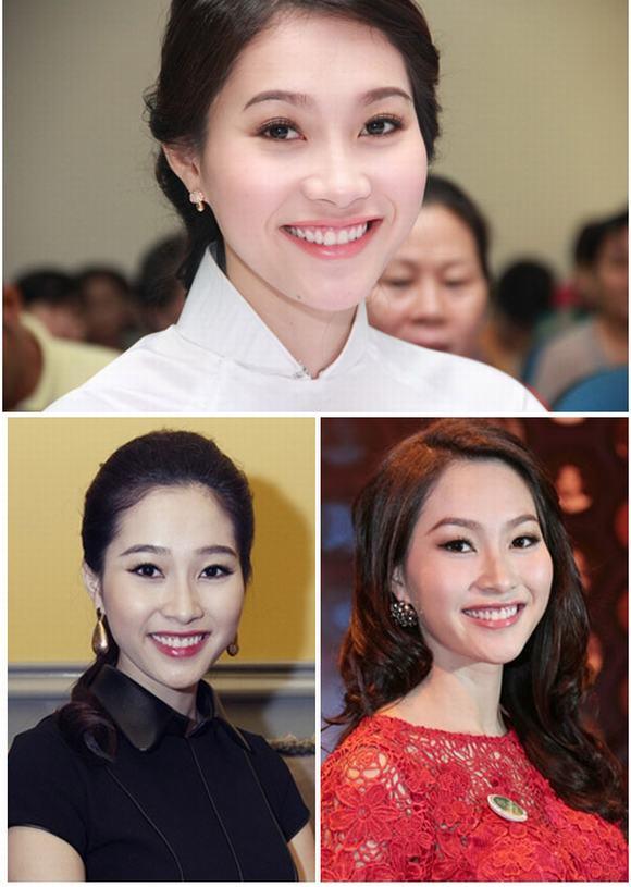 Sao Việt cười hở lợi