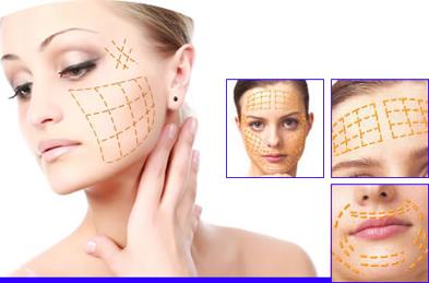 Tìm hiểu về căng da mặt bằng chỉ trên webtretho
