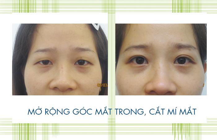 Dr. Hong Lim Choi đến Việt Nam