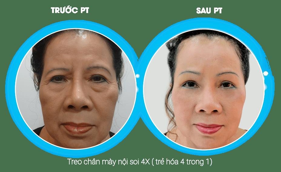 hình ảnh implant