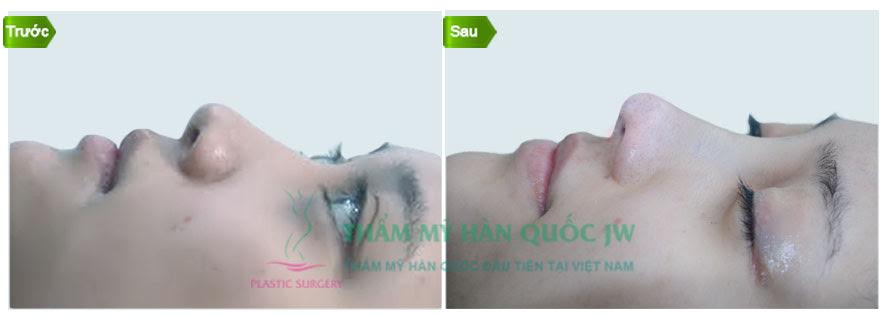 Giải đáp những lo lắng hàng đầu của chị em khi phẫu thuật nâng mũi