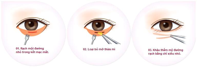 cắt mỡ bọng mắt