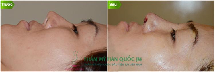 chuyen-tham-va-lam-viec-cua-ts-bs-man-koon-suh-tai-viet-nam-2