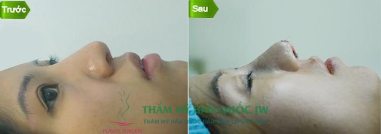 chuyen-tham-va-lam-viec-cua-ts-bs-man-koon-suh-tai-viet-nam-29