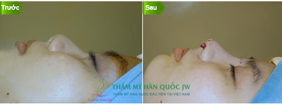 chuyen-tham-va-lam-viec-cua-ts-bs-man-koon-suh-tai-viet-nam-5