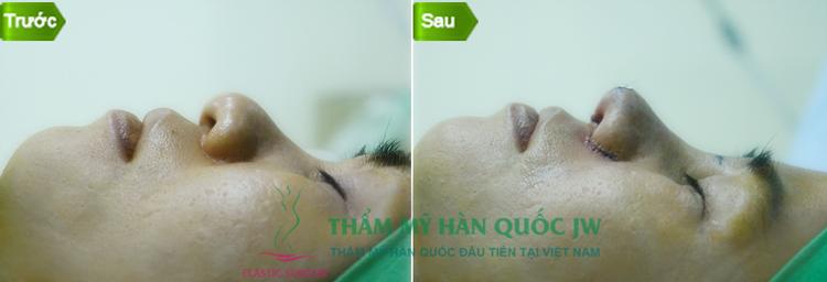chuyen-tham-va-lam-viec-cua-ts-bs-man-koon-suh-tai-viet-nam-8