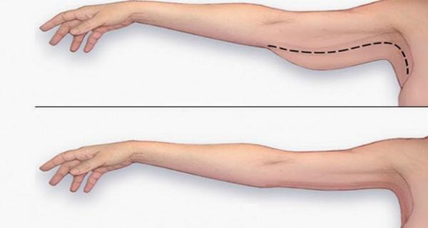 Mô phỏng hiệu quả sau khi hút mỡ bắp tay