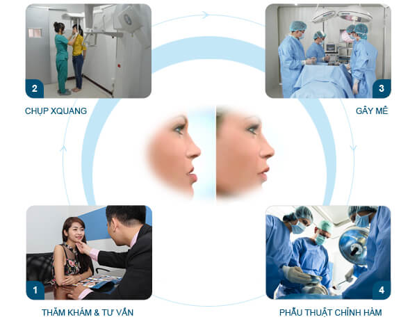 Quy trình thực hiện phẫu thuật hàm hô