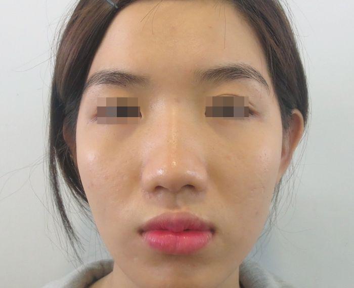 Ghen tị với bạn, cô nàng mũi hếch tìm đến phẫu thuật thẩm mỹ
