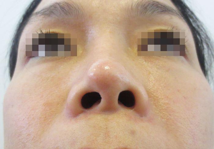 Mũi bị lệch vì thiếu hiểu biết khi phẫu thuật thẩm mỹ