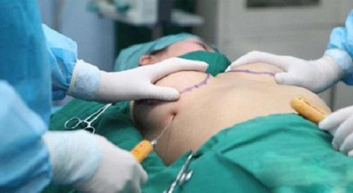 Hậu quả nâng ngực bằng mỡ tự thân