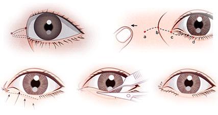 Mở rộng góc mắt công nghệ mới hạn chế sẹo tối đa - Ảnh 2