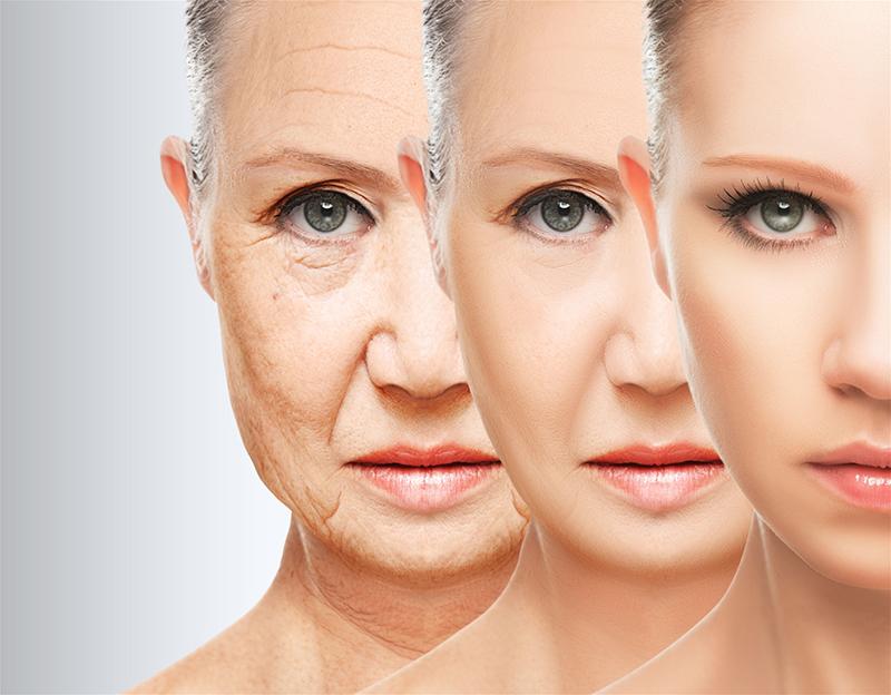 Tổng quát về công nghệ căng da mặt bằng chỉ Ultra V Lift