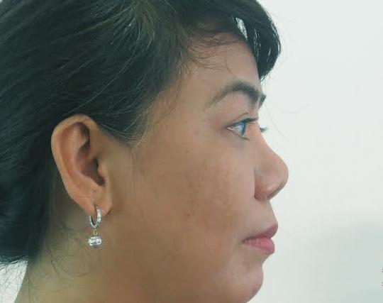Xóa tan nỗi ám ảnh với chiếc mũi hếch nặng do phẫu thuật hỏng
